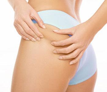 As causas da celulite podem ser variadas, por vezes genética, por vezes hormonais e até devido ao sedentarismo